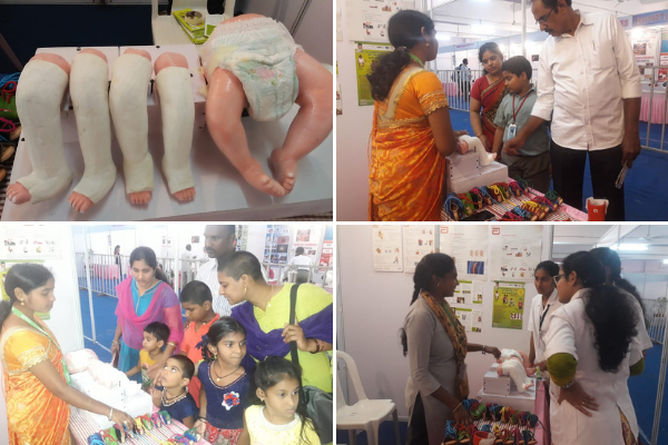 clubfoot india inititiative